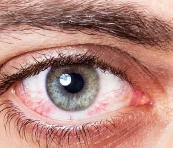 Forma dhe ngjyra e syve tregon më shumë për shëndetin tuaj